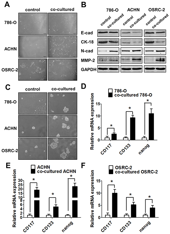 Infiltrating macrophage cells can promote RCC invasion via EMT alteration and increasing RCC stem cell-like population.