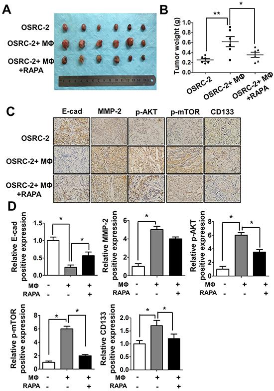 Macrophages can promote RCC tumorigenesis in vivo.