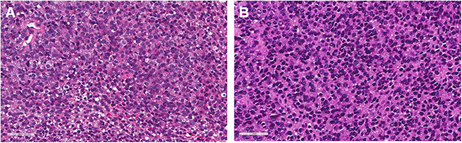 Histological comparison between patient original tumors and a PDOX tumor.