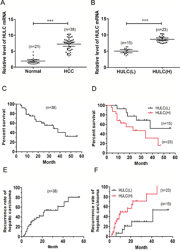 Relative HULC expression in HCC tissues and its relationship with overall survival of HCC patients.