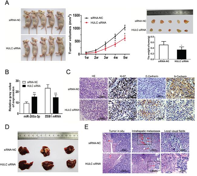 The impact of HULC on tumorigenesis and intrahepatic metastases in vivo.