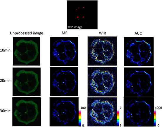 Unprocessed images and kinetic maps (MF, WIR, and AUC maps) using 5 μM gGlu-HMRG, and RFP image (the standard of reference for cancer location).