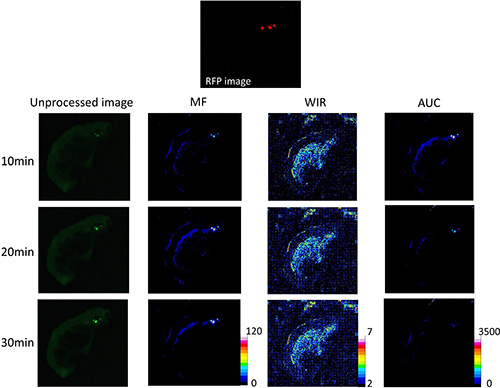 Unprocessed images and kinetic maps (MF, WIR, and AUC maps) using 10 μM gGlu-HMRG, and RFP image (the standard of reference for cancer location).