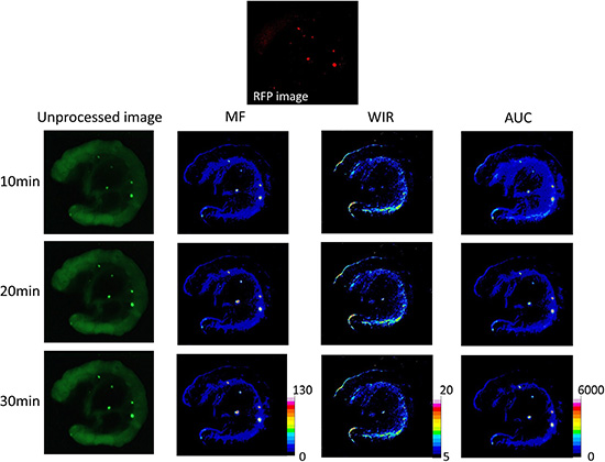 Unprocessed images and kinetic maps (MF, WIR, and AUC maps) using 20 μM gGlu-HMRG, and RFP image (the standard of reference for cancer location).