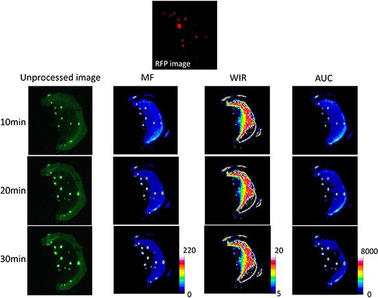Unprocessed images and kinetic maps (MF, WIR, and AUC maps) using 100 μM gGlu-HMRG, and RFP image (the standard of reference for cancer location).
