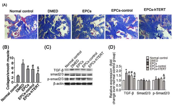 EPCs-hTERT-induced changes in cavernous fibrosis and TGF-β1 signaling pathway expression.