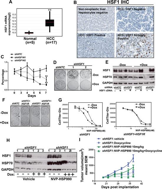 HSF1 knockdown sensitizes hepatocellular cancer cells to HSP90 inhibitor