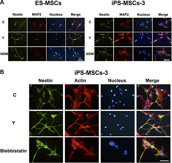 PSC-MSCs express early neural markes after RhoA kinase (ROCK) inhibition.