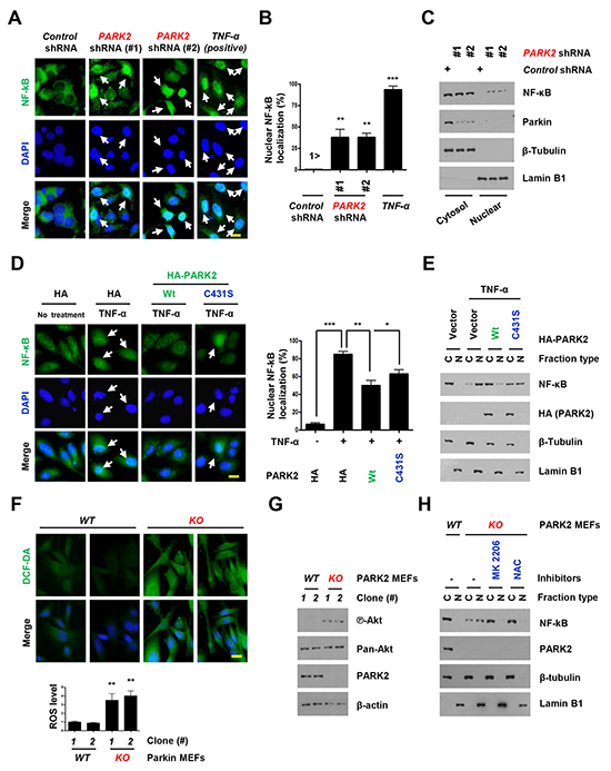 Overexpression of PARK2 inhibits localization of the nuclear NF-κB for inflammation.