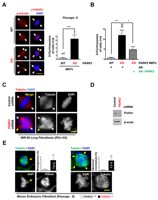 Deletion of PARK2 induced chromosome instability.