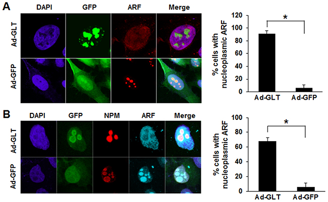 GLTSCR2-induced nucleoplasmic redistribution of ARF.