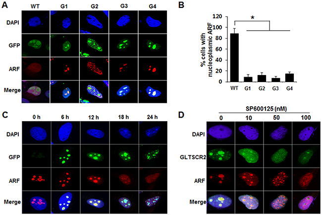 GLTSCR2-ARF binding was crucial for the nucleoplasmic translocation of ARF.