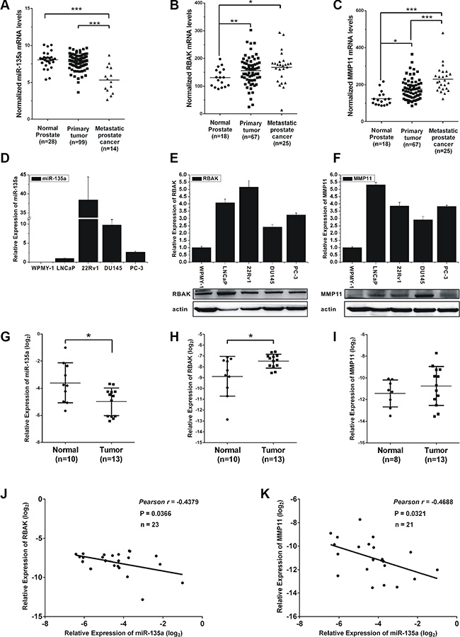 Expression of miR-135a, RBAK and MMP11 in prostate cancer cell lines and tissue samples.