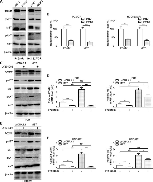 Oncotarget | FOXM1 confers resistance to gefitinib in lung